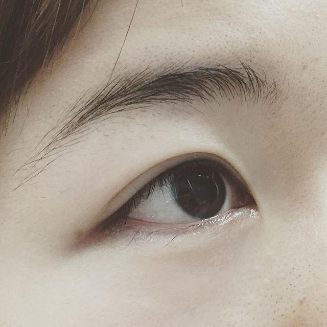 落ちないメイク アートメイクなら渋谷の森クリニック 施術直後のお写真です📸 ナチュラルなアイラインをご希望されました アイラインは、少し目が腫れますが、すぐに引きますので、ご安心ください#ナチュラル #メイク #ナチュラルメイク #美容 #美容クリニック #アイブロウ #落ちないメイク #アートメイク #眉 #アイライン #permanentmakeup #クリニック #渋谷の森クリニック #ナチュラルメイク