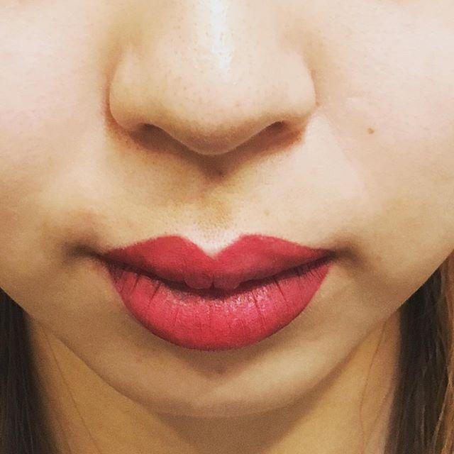 リップの施術ってどんなもの?渋谷の森クリニックでは、眉以外の施術も承ります。施術直後の写真も大公開!#permanentmakeup #lip #ナチュラル #渋谷 #クリニック #原宿